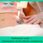 Неодимовый лазер – современный способ удалить татуировку