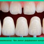 Стоматология. Что такое фарфоровые виниры?