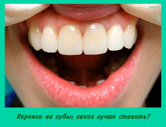 Коронки на зубы: какие лучше ставить?